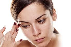 علاج الهالات السوداء تحت العين طبيا