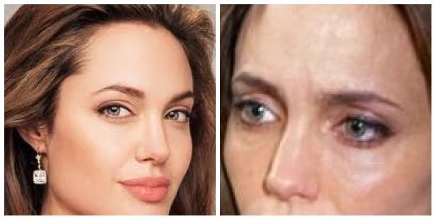 Entertainment: Angelina Jolie Dying Of Hepatitis C, Needs