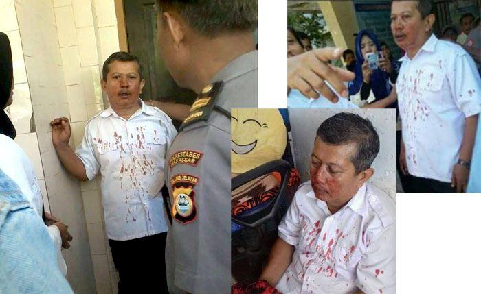 Guru Di Makassar Dianiaya Orang Tua Murid Hingga Berdarah Darah