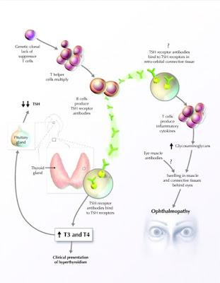 Patogenesis penyakit Graves Hipertiroid