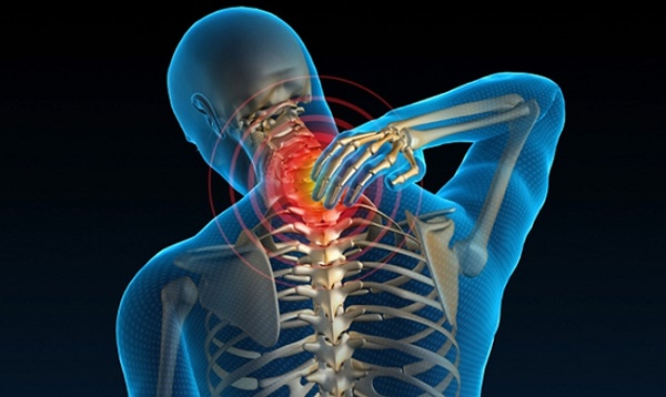 Thoái hóa cột sống vùng cổ gây đau đớn cho người bệnh