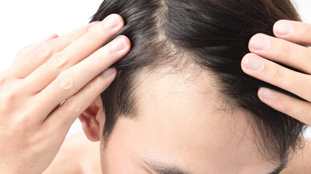 How To Prevet Your Receding Hairline