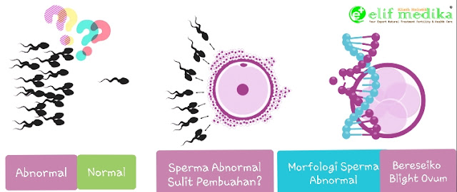 Morfologi Sperma Abnormal beresiko perkembangan embrio menjadi tidak sempurna (janin tidak berkembang) atau Blight Ovum