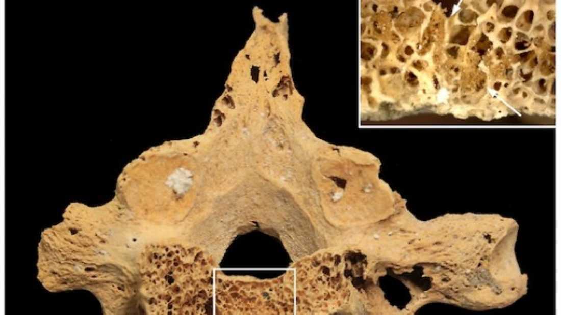 باحثون مصريون يتوصلون لإكتشاف هيكل عظمي مصري عمره 4200 سنة يُظهر علامات سرطان الثدي