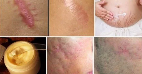 Remove Any Type Of Scar From Your Body In Less Than A Month