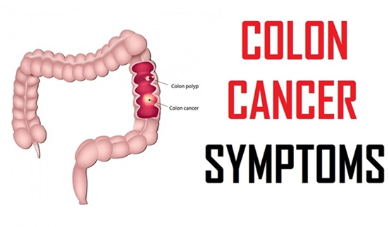 Image result for colon cancer symptoms