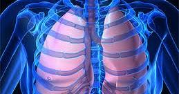 cara mengobati penyakit paru paru alami | Nama Obat Batuk ...