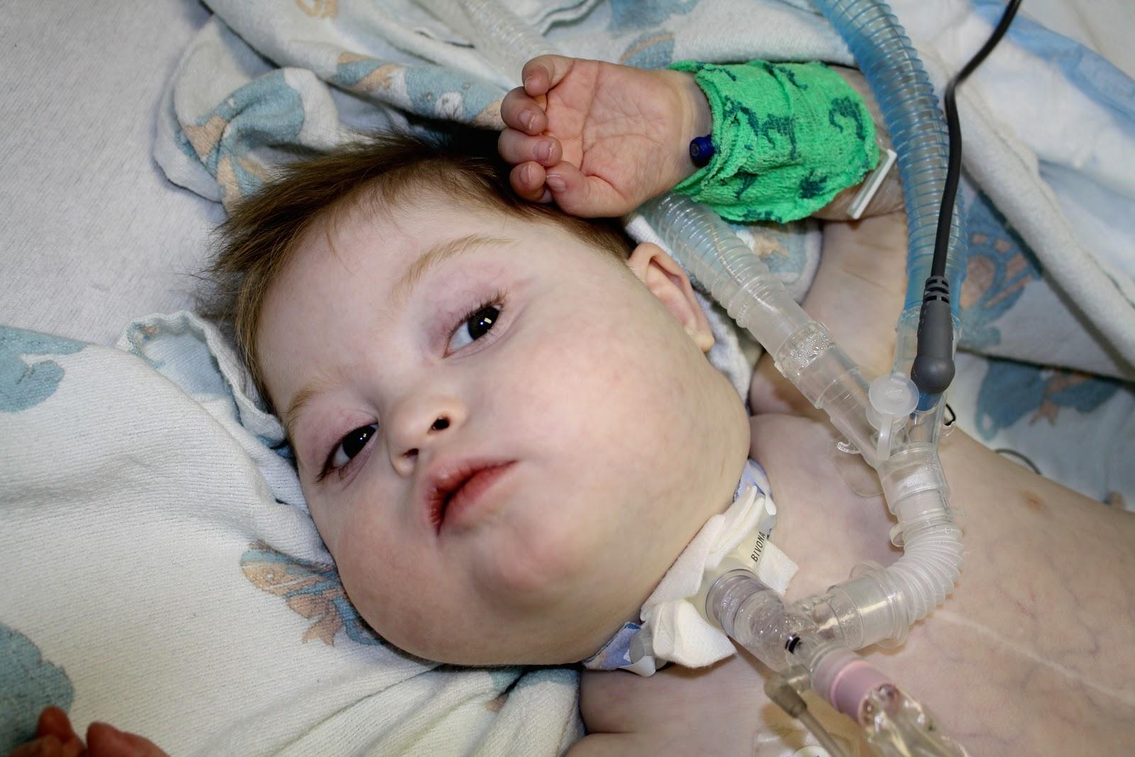 Ventilator Patient Trach The ventilator that someVentilator Patient Child