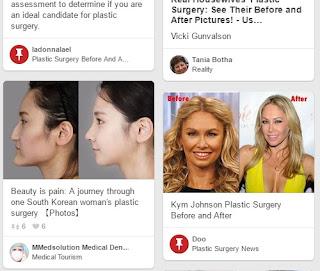Social Media Marketing Plastic Surgeons