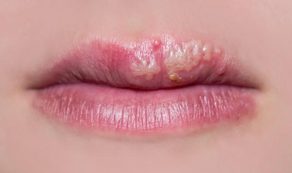 Come curare l'herpes labiale