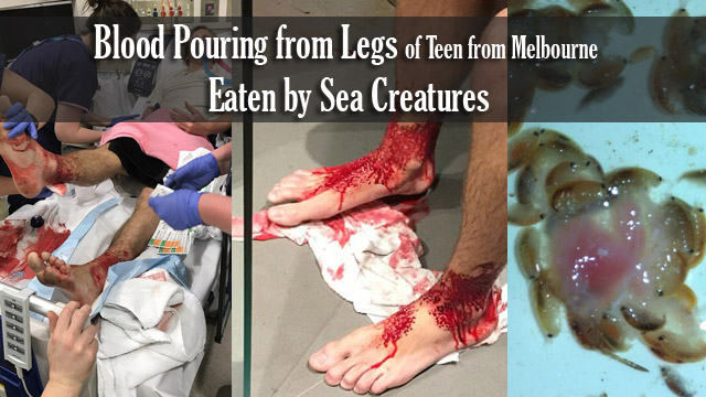 Blood Pouring from Legs of Teen from Melbourne Eaten by Sea Creatures