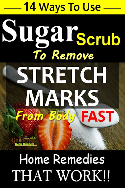 Sugar for stretch marks, sugar scrub for stretch marks, how to lighten stretch marks fast with Sugar, how to get rid of stretch marks, home remedies for stretch marks, remove stretch marks, stretch marks treatment,