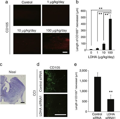 i-Fect Delivers siRNA to Study Angiogenesis in Brain Injury