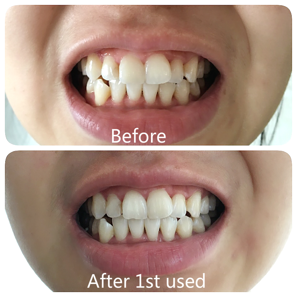 Pop Smile Teeth Whitening Home Kit Review Before After