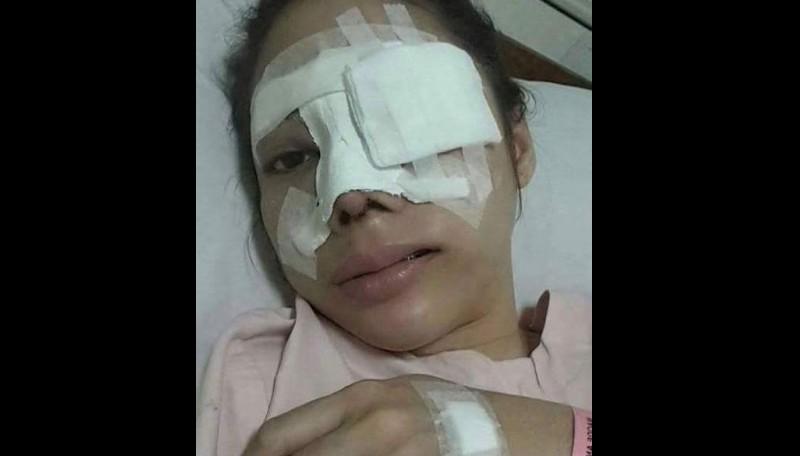 Novena Widjaya dirawat dalam kondisi babak belur