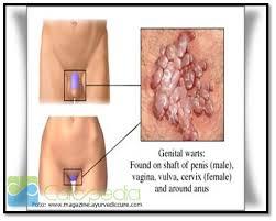 Obat Tradisional Penyakit Herpes Genital di Apotik