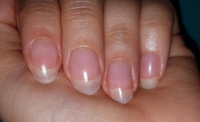 Pink Cloud 3-in-1 Collagen Beauty Drink - Nails After