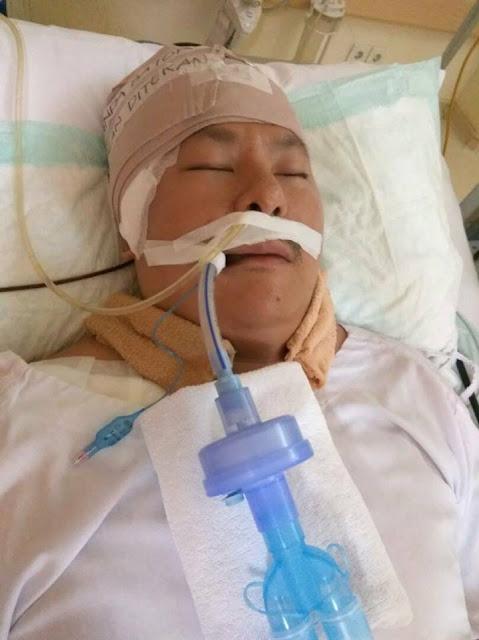 Sehari Usai Sumpahi Amien Rais Stroke, Ahoker Frans Thamura Koma Pecah Pembuluh Darah Otak