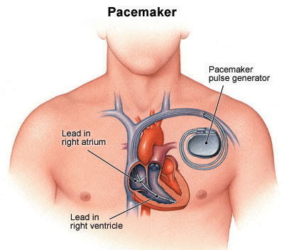 pacemaker implantation in India