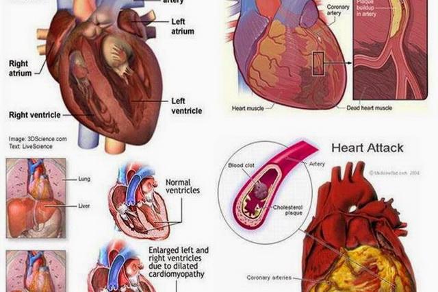 semne ale atacului de cord