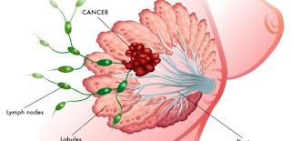 Obat Penghancur Tumor