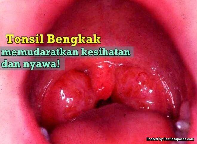 Punca Sakit Tonsil