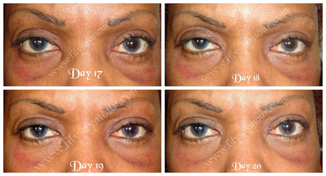 African American Ethnic Blepharoplasty (Eyelid Surgery) Day 17 - Day 20