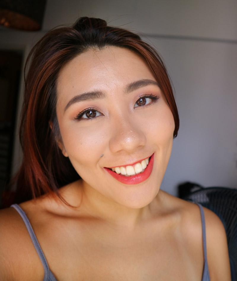 NOVU Europa Acne Treatment Review Singapore