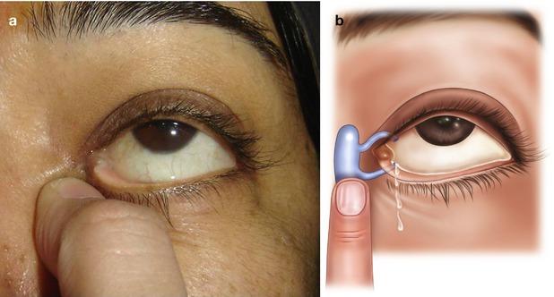 Regurgitation on pressure over the lacrimal sac test
