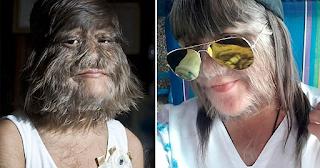 Το πιο τριχωτό κοpίτσι στο κόσμο ξυρίστηκε γιατί βρήκε τον έρωτα της ζωή της