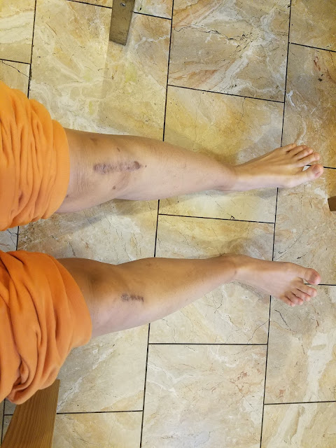 photo of the author's legs with scars on the knees