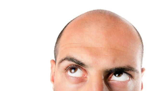 5 Fakta Tentang Rambut Yang Botak