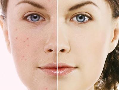 outile efficace contre l'acné