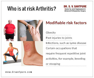 http://www.drsantpure.com/arthritis-osteoarthritis.html