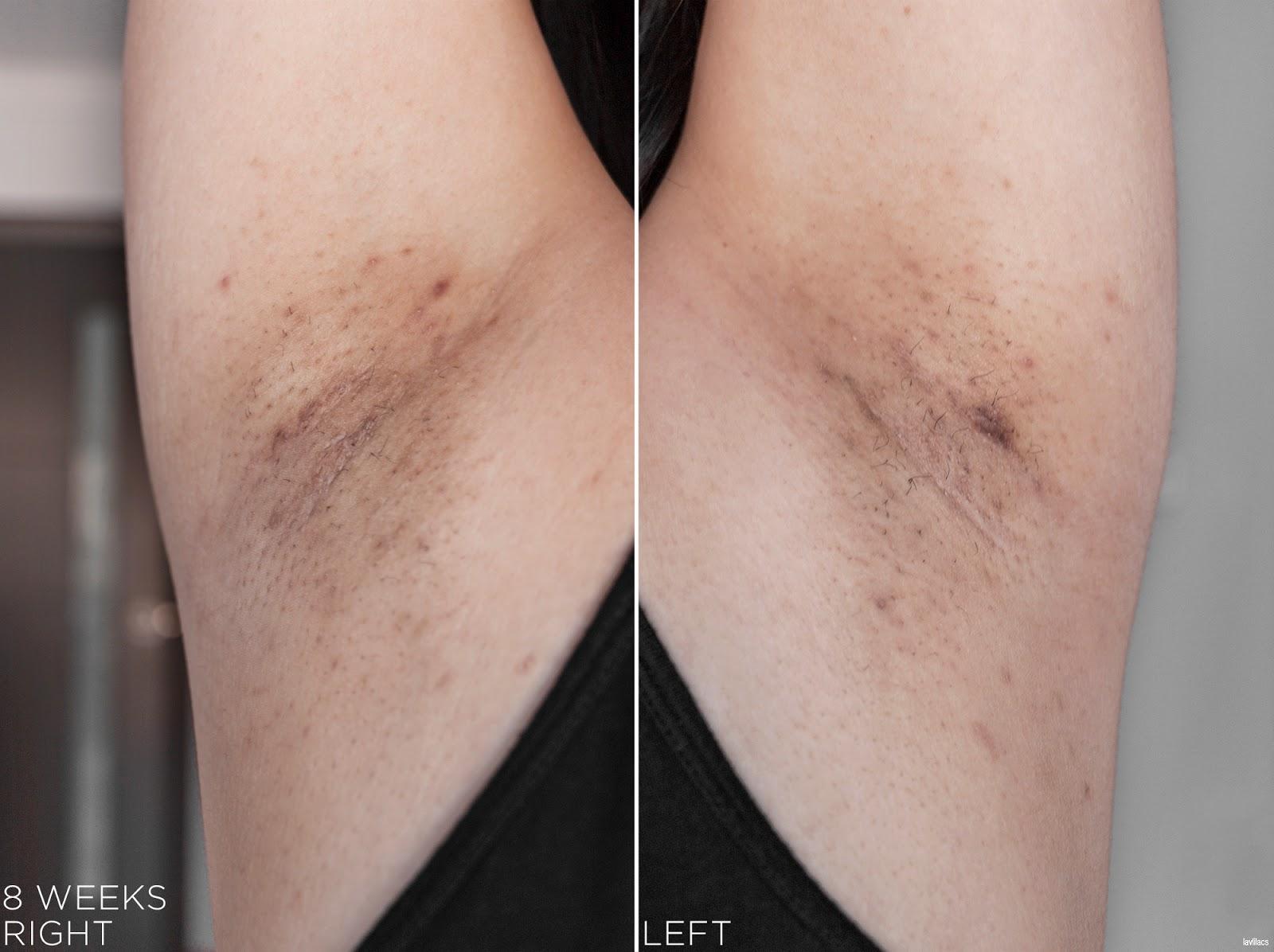 tria Hair Removal Laser Armpits Hair 8 Weeks