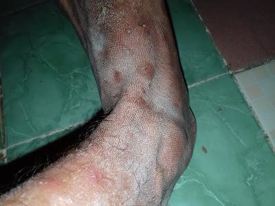 Cara membersihkan noda semen pada kaki