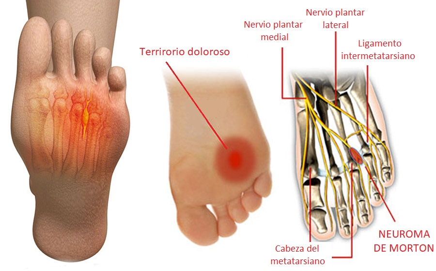 Nerve Pain In Toes From Tight Shoes