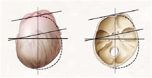 Deformidad en Plagiocefalia