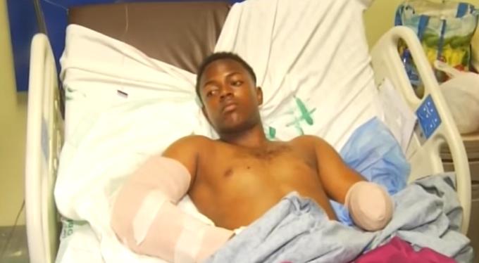 Video: Le mochan brazo por juego de baloncesto