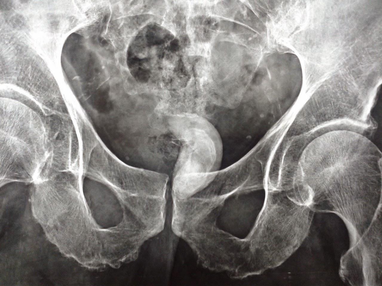 presenza di calcificazioni alla prostata
