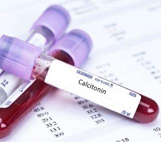 الكالسيتونين calcitonin
