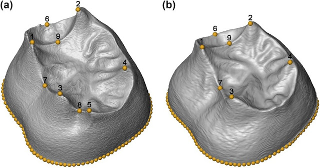 First 3-D morphometric study of the molars of Sima de los Huesos