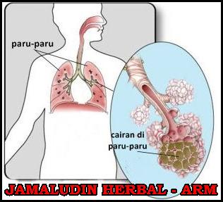 http://arumherbal30.blogspot.com/2018/10/obat-herbal-untuk-menghilangkan-cairan.html