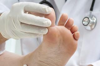 أمراض فطرية تصيب الجلد وكيفية علاجها