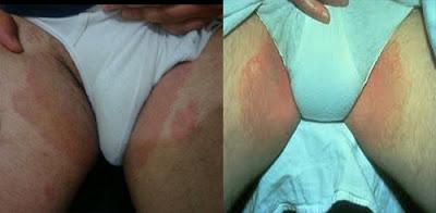 Obat Jamur Pada Selangkangan Dan Sekitar Kelamin Pria