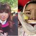 ทำศัลยกรรม เมื่อสาวคนนี้ทุ่มเงินเกือบล้าน ไปโมหน้าใหม่ที่เกาหลี คุ้มไม่คุ้ม มาดูกัน!!