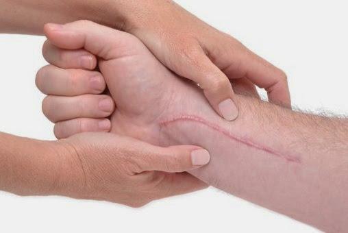 Cara Mencegah Timbulnya Penyakit Keloid