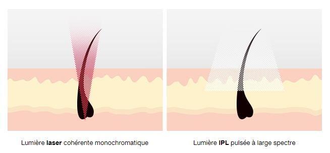 les gommettes de melo avis epilation lumiere pulsée braun silk expert 5 ipl test poil definitif