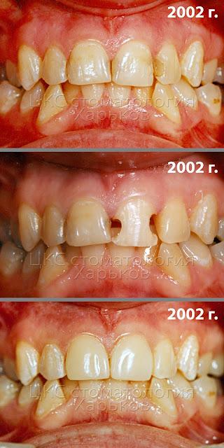 Зубы до и после проведения реставрации композитами