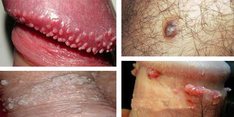 Canker Sores: STD Signs in Males